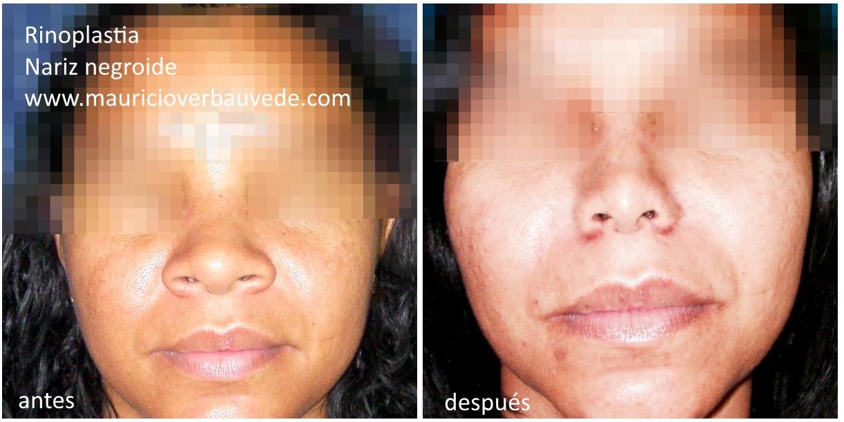 rinoplastia para corregir nariz ancha