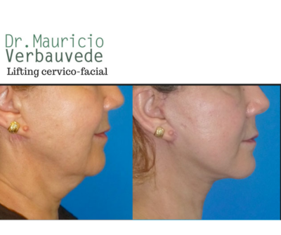 lifting cervico-facial