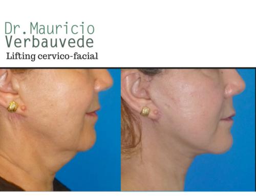 Rejuvenecer gracias al lifting cervico-facial